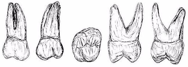 tercer molar superior izq